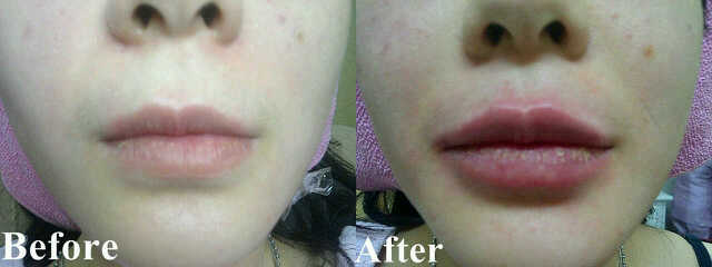 filler for lips